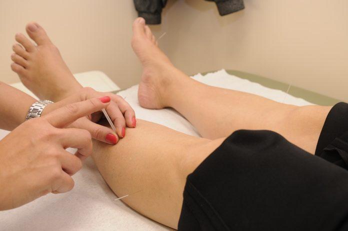 Acupuncture For Fibromyalgia