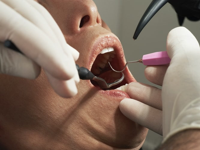 3 Advantages For The Professional Teeth Cleaning Process